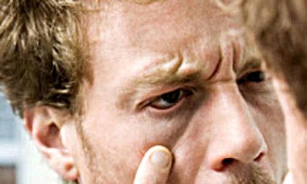 diaforetiko.gr : perierges astheneies 04 600x360 Αυτές είναι οι πιο... περίεργες ασθένειες ανά τον κόσμο!!!