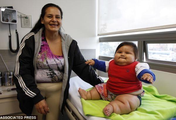 1df0dba334d Ένα μωρό 8 μηνών στην Μπογκοτά της Κολομβίας ζυγίζει 21 κιλά, δηλαδή τα  τριπλάσια του φυσιολογικού για μωρό της ηλικίας του.