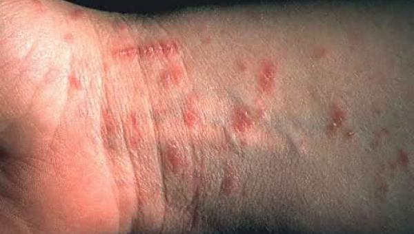 Γιατί τα αυτοάνοσα νοσήματα επιτίθενται στον ανθρώπινο οργανισμό;