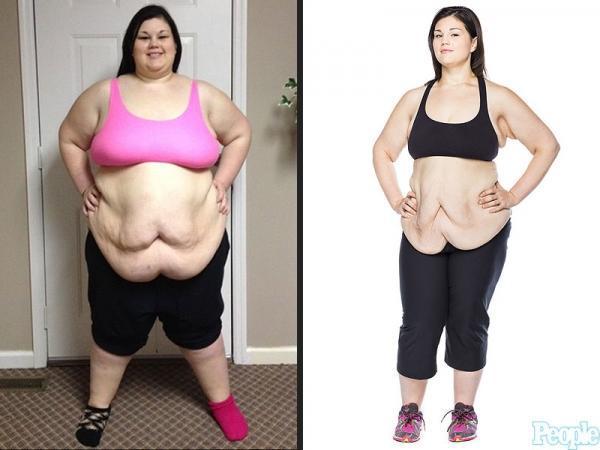 caitlin smith 800 600x450 Έτσι γίνεται το σώμα μετά από μεγάλη απώλεια κιλών Η 19χρονη που είχε φτάσει να ζυγίζει 188 κιλά και έχασε 95!
