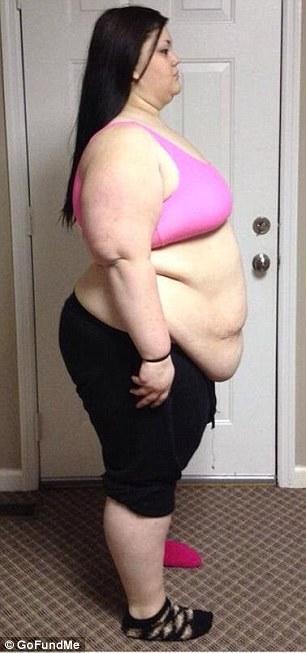 kaitlyn1 Έτσι γίνεται το σώμα μετά από μεγάλη απώλεια κιλών Η 19χρονη που είχε φτάσει να ζυγίζει 188 κιλά και έχασε 95!