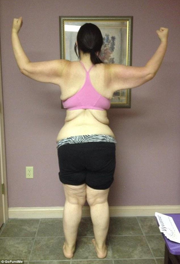 kaitlyn2 Έτσι γίνεται το σώμα μετά από μεγάλη απώλεια κιλών Η 19χρονη που είχε φτάσει να ζυγίζει 188 κιλά και έχασε 95!