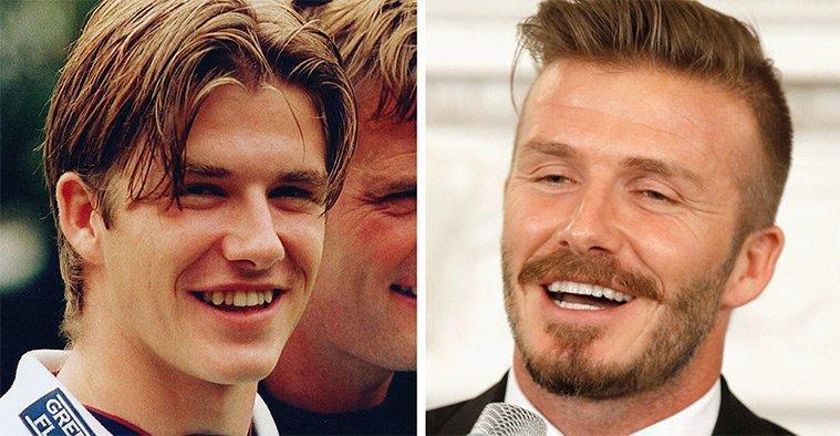 diaforetiko.gr : 100747 225379 Τα ψεύτικα τα δόντια τα μεγάλα! To Hollywood μας δείχνει το πραγματικό του χαμόγελο