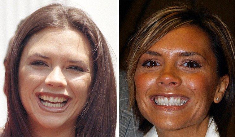 diaforetiko.gr : 100747 225388 Τα ψεύτικα τα δόντια τα μεγάλα! To Hollywood μας δείχνει το πραγματικό του χαμόγελο