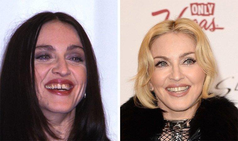 diaforetiko.gr : 100747 225391 Τα ψεύτικα τα δόντια τα μεγάλα! To Hollywood μας δείχνει το πραγματικό του χαμόγελο