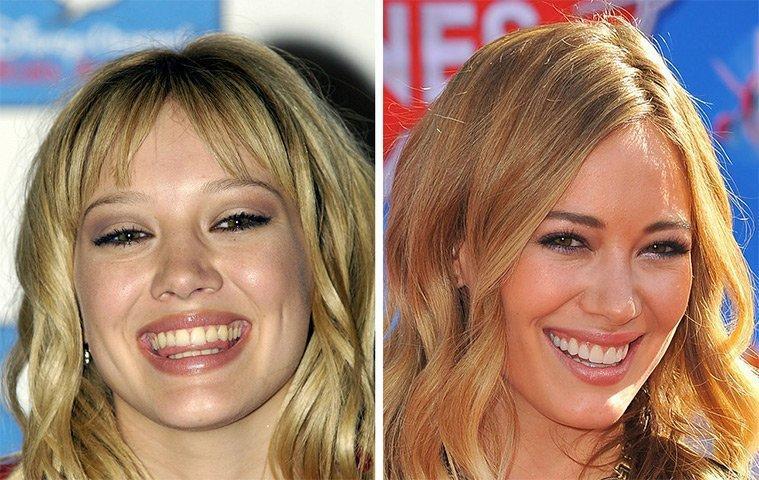 diaforetiko.gr : 100747 225392 Τα ψεύτικα τα δόντια τα μεγάλα! To Hollywood μας δείχνει το πραγματικό του χαμόγελο