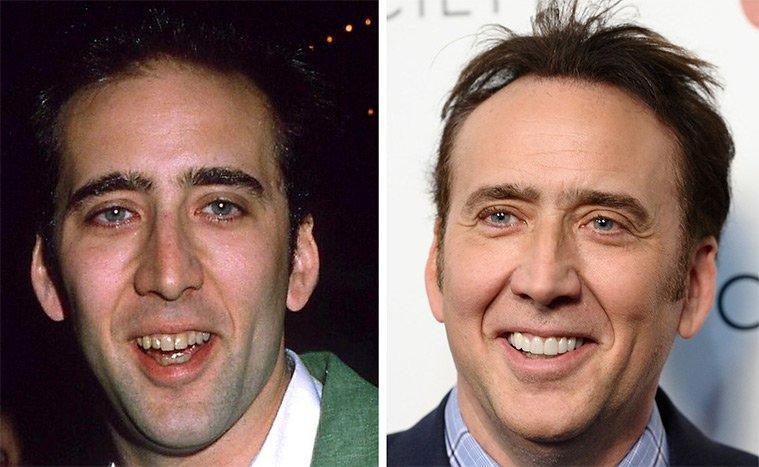 diaforetiko.gr : 100747 225426 Τα ψεύτικα τα δόντια τα μεγάλα! To Hollywood μας δείχνει το πραγματικό του χαμόγελο