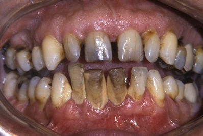 diaforetiko.gr : teeth Δείτε τι θα συμβεί εάν κόψετε το κάπνισμα για ένα μήνα.