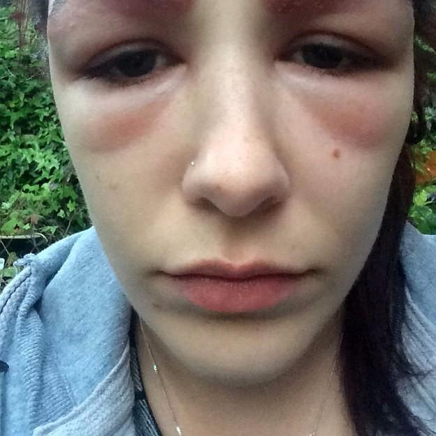 filing images 0e4239970fd4 19χρονη υποβλήθηκε σε θεραπεία πύκνωσης φρυδιών. Το αποτέλεσμα προκαλεί τρόμο.