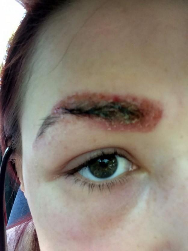 filing images 39d5bc27d348 19χρονη υποβλήθηκε σε θεραπεία πύκνωσης φρυδιών. Το αποτέλεσμα προκαλεί τρόμο.