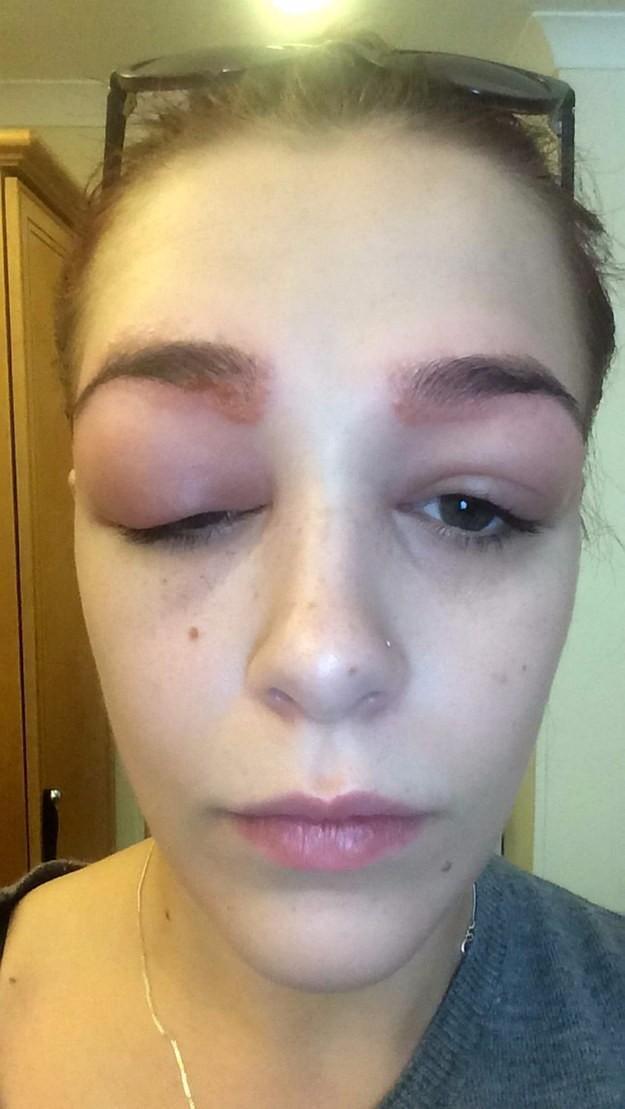 filing images 9b7289455bf4 19χρονη υποβλήθηκε σε θεραπεία πύκνωσης φρυδιών. Το αποτέλεσμα προκαλεί τρόμο.