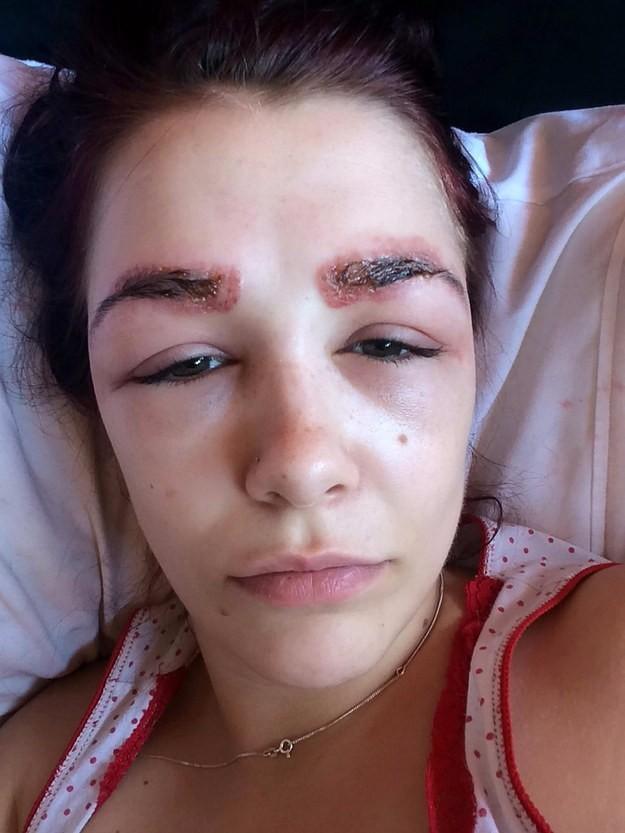 filing images f0c50ed88f74 19χρονη υποβλήθηκε σε θεραπεία πύκνωσης φρυδιών. Το αποτέλεσμα προκαλεί τρόμο.