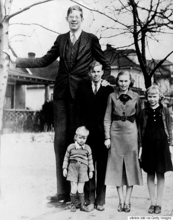 diaforetiko.gr : o ROBERT WADLOW 5703 H συγκλονιστική ζωή του πιο ψηλού άντρα που έζησε ποτέ! Ως νήπιο είχε 1,5 μέτρο ύψος και τελικά άγγιξε τα 2,72 μέτρα !!!