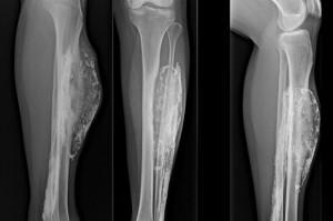 diaforetiko.gr : xraybite2 300x199 Δείτε πως έγινε το πόδι μιας γυναίκας που την δάγκωσε δηλητηριώδης οχιά, πριν από 50 χρόνια (φωτογραφία)