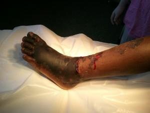 diaforetiko.gr : xraybite3 300x225 Δείτε πως έγινε το πόδι μιας γυναίκας που την δάγκωσε δηλητηριώδης οχιά, πριν από 50 χρόνια (φωτογραφία)