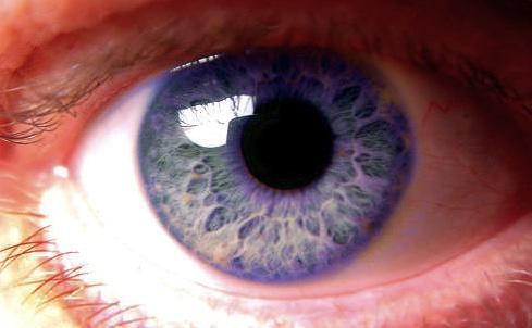 Genetic mutations in humans eye color