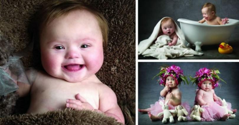 Μωρά με Σύνδρομο Down ποζάρουν σε μία Εκπληκτική Φιλανθρωπική Φωτογράφιση!!
