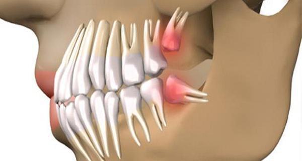 Επαναστατική ανακάλυψη: Πείτε αντίο στα οδοντικά εμφυτεύματα και μεγαλώστε τα δικά σας δόντια μέσα σε 9 εβδομάδες.