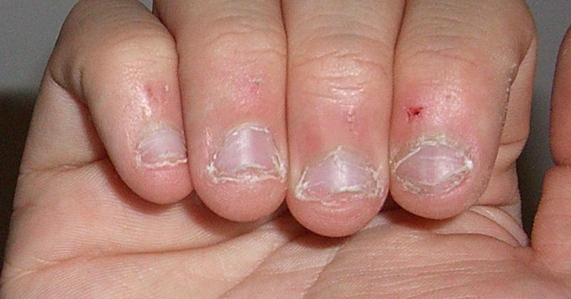 Οι άνθρωποι που τρώνε τα νύχια τους έχουν αυτό το κοινό χαρακτηριστικό στην προσωπικότητα τους.