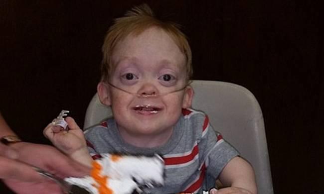 Θα δακρύσετε! 13χρονος με σπάνια πάθηση χάρισε τα δώρα γενεθλίων του σε άρρωστα παιδιά