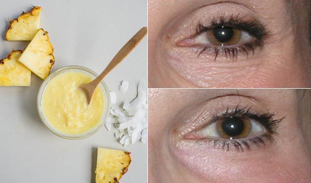 Εφαρμόστε ΑΥΤΗ την σπιτική θεραπεία κάτω από τα μάτια και δείτε τις ρυτίδες να εξαφανίζονται