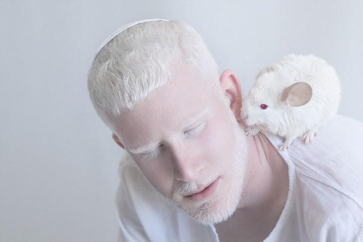 beautiful-albino-people-albinism-12-582ebf0687ed7__880