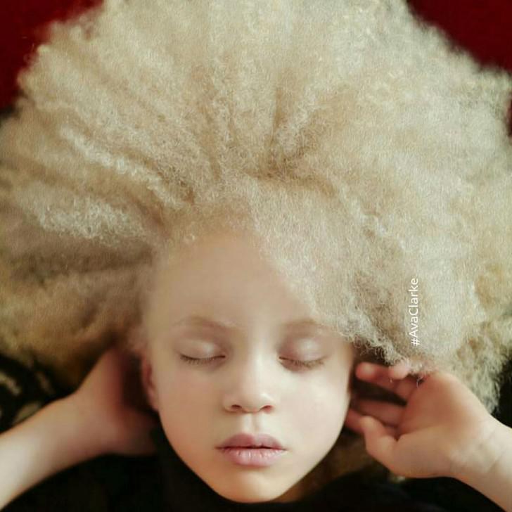 beautiful-albino-people-albinism-46-582f0ea51b8b1__880