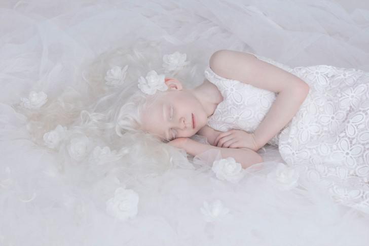 beautiful-albino-people-albinism-9-582ebf00d33b0__880