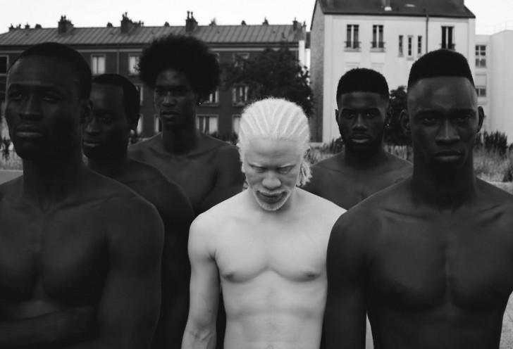 beautiful-albino-people-albinism-9-582f0ef1a3bc2__880