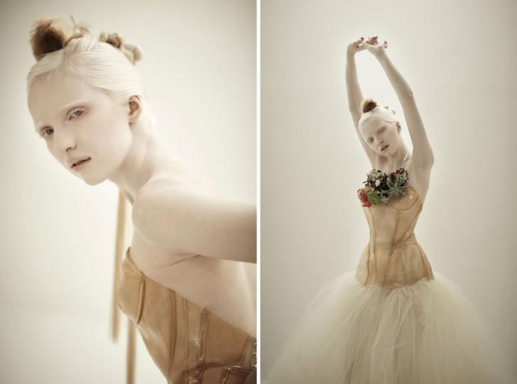 beautiful-albino-people-albinism-104-582f02c0ddd6f__880