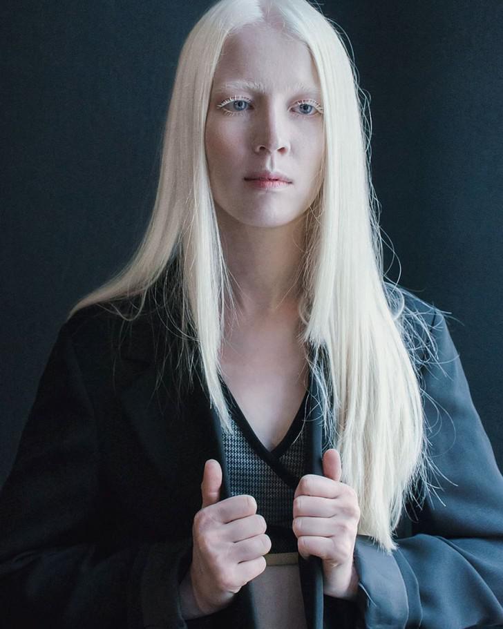 beautiful-albino-people-albinism-26-582ece4227a03__880