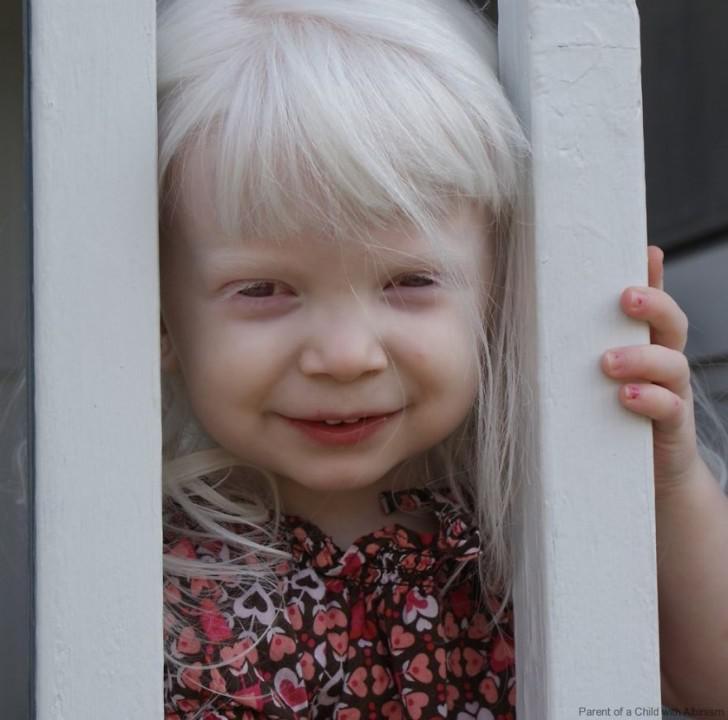 beautiful-albino-people-albinism-14-582f11e46f02c__880