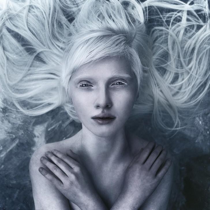 beautiful-albino-people-albinism-7-582f0827b8087__880