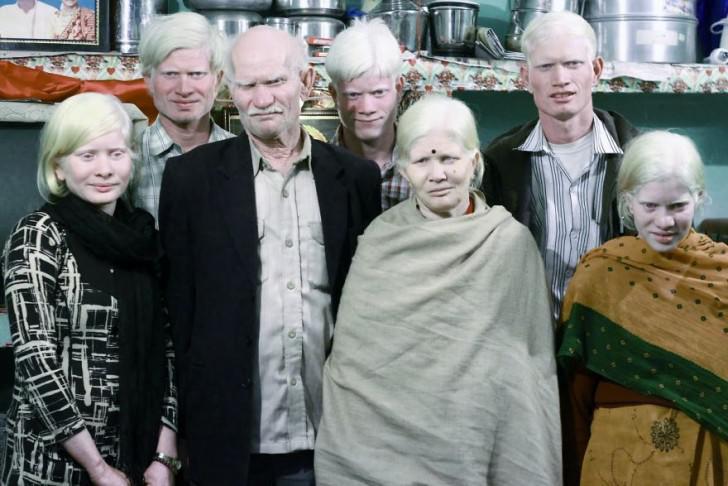 beautiful-albino-people-albinism-12-582f0f61e782e__880