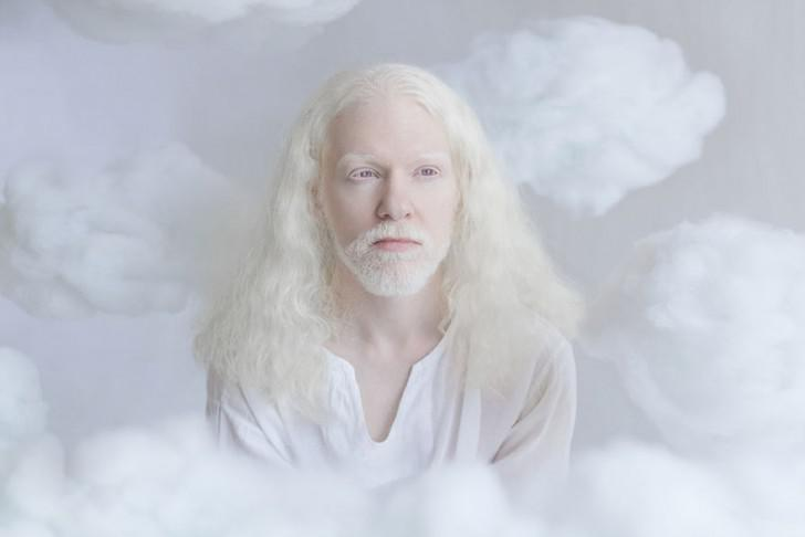 beautiful-albino-people-albinism-7-582ebefd0fe5d__880