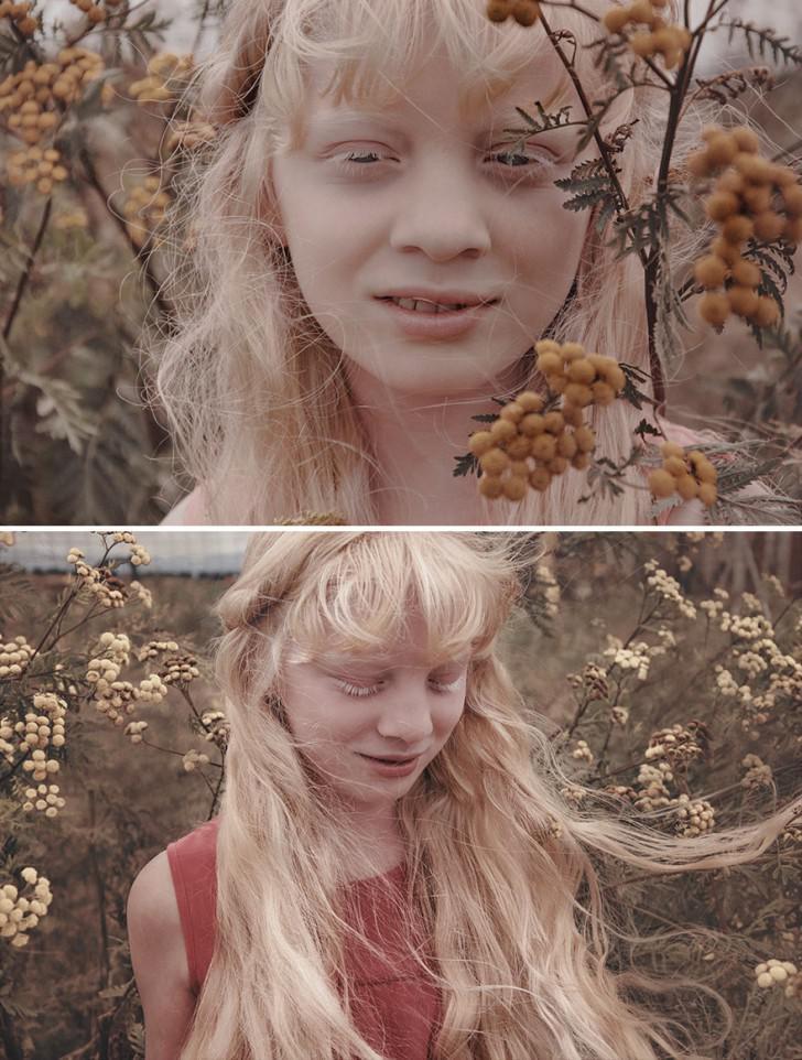 beautiful-albino-people-albinism-21-582ebf1b96e88__880