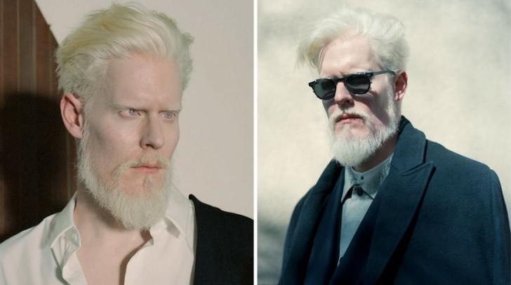 beautiful-albino-people-albinism-48-582f1361c34b2__880