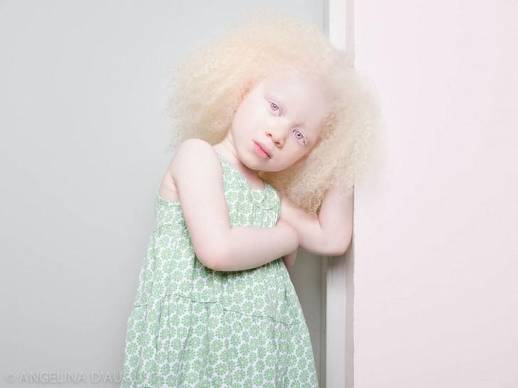 beautiful-albino-people-albinism-51-582f007b2f4b8__880