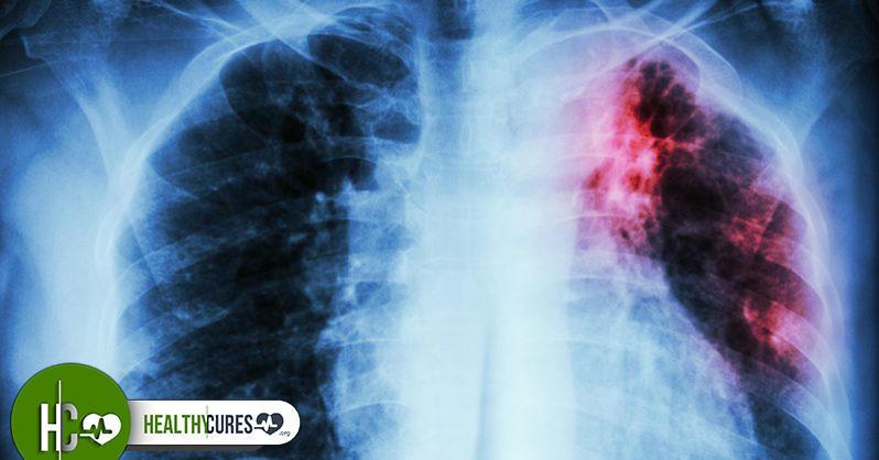 Το ρόφημα που καθαρίζει τους πνεύμονες και πρέπει να δοκιμάσει όποιος καπνίζει ή έχει καπνίσει έστω και μια φορά στη ζωή του