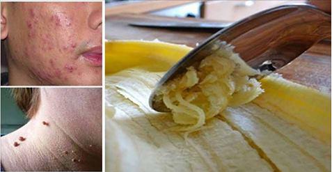 Αφού διαβάσετε αυτό το άρθρο ΔΕΝ θα ξαναπετάξετε ΑΥΤΟ το μέρος της μπανάνας