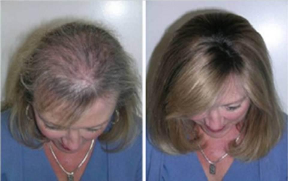 Είχε αδύναμη τρίχα και της έπεφταν τα μαλλιά. Δείτε πως κατάφερε να τα σώσει και δεν θα το πιστεύετε!