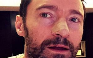 MAIN-Hugh-Jackman-is-being-treated-for-skin-cancer-again