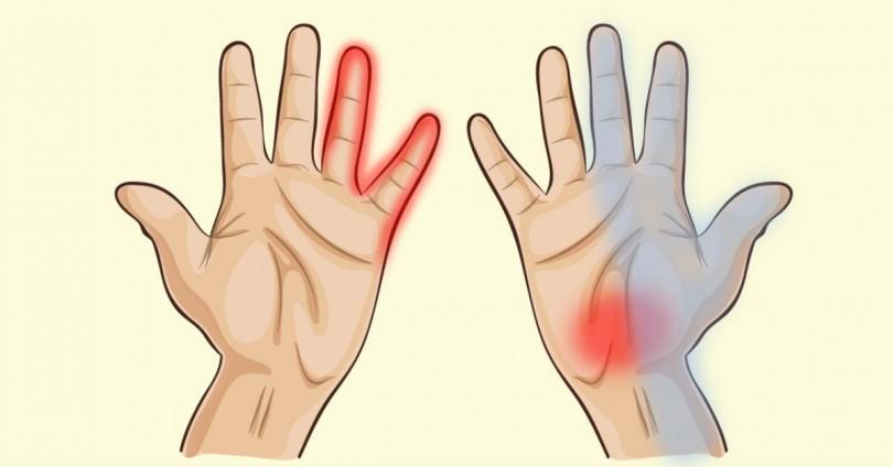 7 προειδοποιητικά σημάδια στα χέρια, που αποκαλύπτουν σοβαρά προβλήματα υγείας