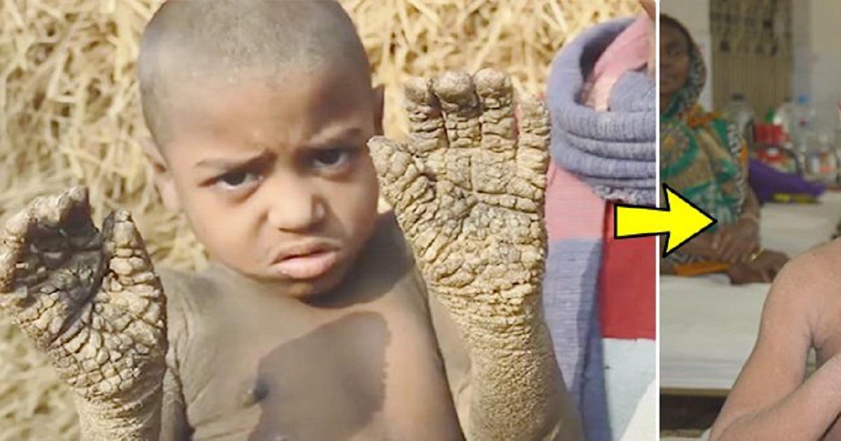 Η απίστευτη μεταμόρφωση του αγοριού που μετατρεπόταν σε «πέτρα» λόγω σπάνιας δερματικής ασθένειας