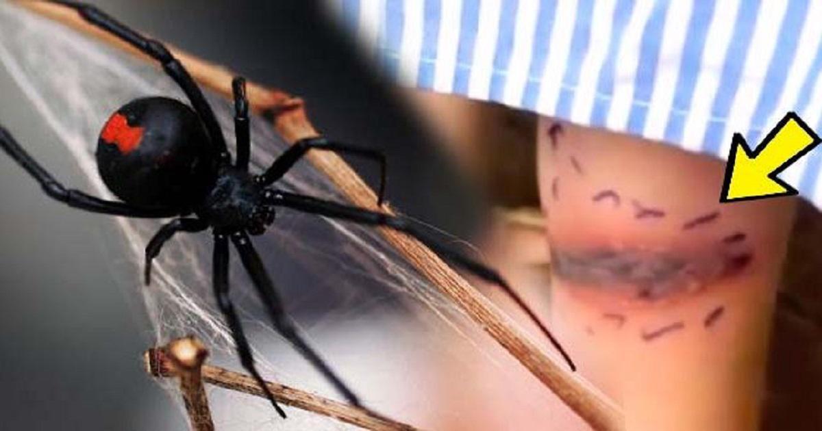 Μητέρα νόμιζε πως το παιδί της τσιμπήθηκε από έντομο, αλλά οι γιατροί της είπαν πως το δάγκωσε η δηλητηριώδης Μαύρη Χήρα