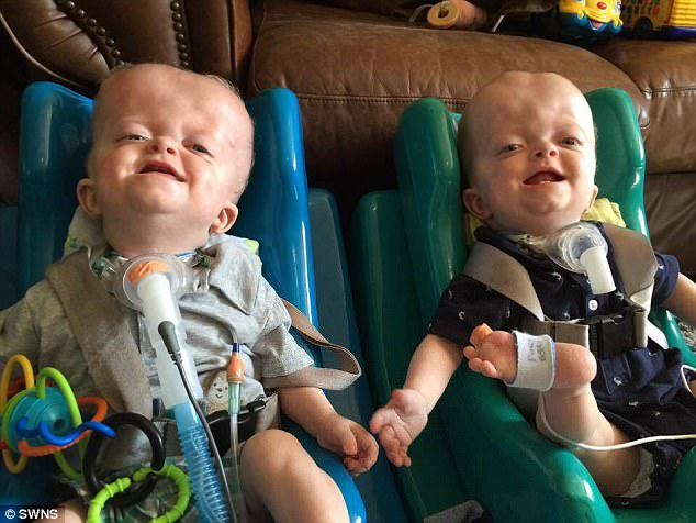 Happy against the odds: Lucy said that despite the twins' health issues they are a lot of fun and with the right care will be able to one day live independent lives