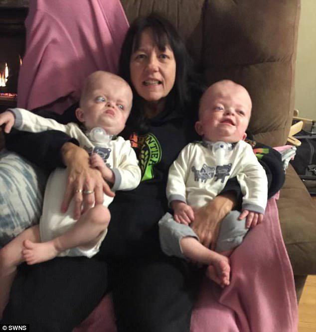 A full-time job: Linda has to tuck the twins tight at night so they don't accidentally remove their breathing tubes in the middle of the night