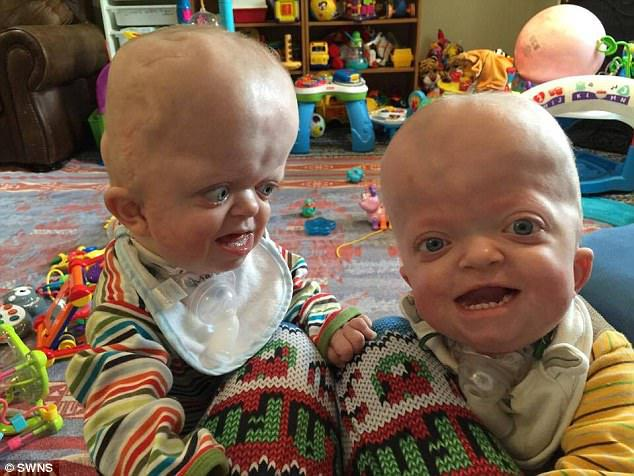 Play time! Twins Matthew and Marshall inherited the rare genetic disorder, which affects their head and skull, from their father