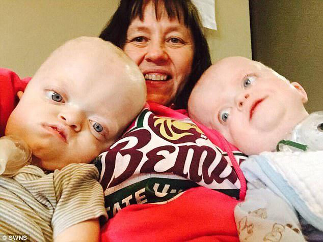 It's all worth it to her: The twins require round-the-clock care but the Minnesota mom's career as a nurse has prepared her to take on the challenge
