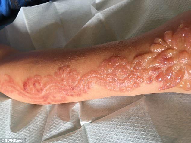 The primary school pupil's tattoo erupted in painful blisters and she had to go to a specialist burns unit to have them cut away